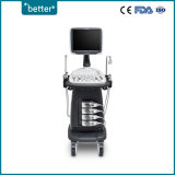 Medical Instrument-Ultraschall-Scanner-Farbe Doppler Sonoscape S12