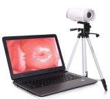 Sistema de Digital Imaging Camera colposcopio de ginecología