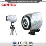Ausrüstungs-Sony-Darstellung-Systemelektronischer Colposcope (EC100)