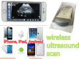 iPhone iPad intelligentes Telefon-drahtloser Ultraschall-Scanner