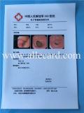 Pellicola asciutta medica trasparente del getto di inchiostro della pellicola di ultrasuono