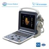 Nouveau 3D/4D numérique complet de la machine de diagnostic à ultrasons Doppler couleur Yj-U60plus
