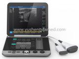 заводская цена 12,1 дюймовый ноутбук ультразвукового сканера .