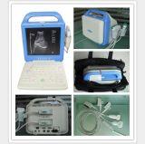 Блок развертки ультразвука компьтер-книжки с монитором LCD 12 дюймов