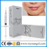 Remplissage acide de Reyoungel Hyaluronate (certificat de la CE)