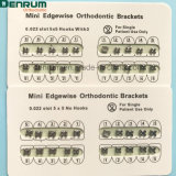Parentesi graffe ortodontiche di fabbricazione di Denrum