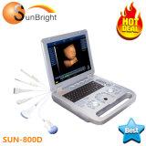 Sun Full-Digital-800d'imagerie du faisceau de chariot du scanner à ultrasons