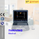 Portable Medical Thr-Atn6801 2D Color Ultrasound Scanner