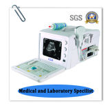 B de Machine van de ultrasone klank voor Chirurgie in het Ziekenhuis