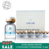 Il kit liofilizzato la riparazione di cura di pelle della polvere dei contrassegni dell'acne del contrassegno privato del ODM dell'OEM rimuove il trattamento dell'acne di riparazione delle cicatrici dell'acne dei contrassegni dell'acne dei pozzi dell'acne dei contrassegni dell'acne