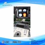 Instrumento de diagnóstico de ultrasonido digital Doppler de color