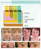 Gute Preis 2017 ultra Lifitng Schönheit Hifu Gesichtssorgfalt-Maschine