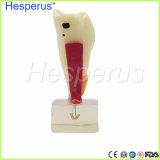 4 : 1 Dentiste Étude dentaire enseigner dent Dents Modèle Modèle de maladie