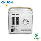 Hospital Medical Portable 4D Color Doppler Chison Q5 Preço de ultra-som
