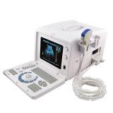 Scanner de ultra-som portátil digital (RUS-6000D) - Martin