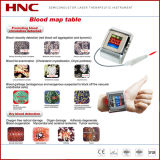 Hypertension, Hyperviscosity, Hyperlipidemia를 위한 공장 Wholesale Cold Laser Therapy Watch