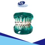 Uno mismo ortodóntico dental de la marca del laser que liga paréntesis con 12345hooks