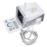 beweglicher Scanner des Ultraschall-10-Inch mit Mikro-Konvexem Fühler (RUS-6000D) --Fannyw