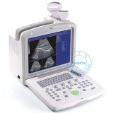 L'équipement médical portable SonoScan échographe (P2)