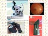 Решения для цифровой обработки изображений Topcon дна матки пациентки камер