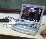 Ветеринарный ультразвук портативная пишущая машинка 3D для малых и больших животных