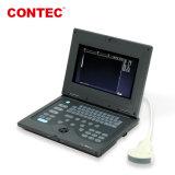 Contec Cms600p медицинское оборудование ультразвукового сканера устройства