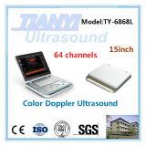 Bateria de lítio incorporada de ultra-sonografia Doppler portátil a máquina