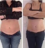 Kumashape RF de vácuo para remoção de gordura Corpo Pele Emagrecimento Aperte o dispositivo de beleza