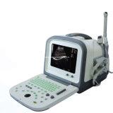Échographie portable (HY5511)