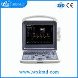 Scanner de ultra-som portátil digital completo (K2)