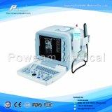 De Scanner van de ultrasone klank, de Scanner van de Ultrasone klank voor Zenuwen en Spieren
