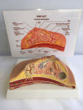 고품질 병리학적인 여자 유방 해부 의학 모형 (R150105)