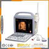 Máquina del ultrasonido del equipo Bcu-30 3D 4D del hospital