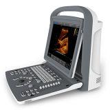 Portable bianco del computer portatile di Doppler di ultrasuono del nero ultrasonico dello scanner (SC-ECO2)