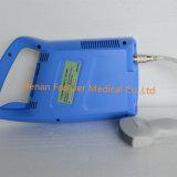 Le diagnostic de l'équipement numérique complet (Palm échographe YJ-U100)