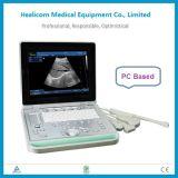 最も安いHbw-9ラップトップB/W Ulrasoundのスキャンナーのデジタル携帯用診断機械