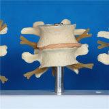 Modèle de squelette de l'anatomie médicale lombaire de la colonne vertébrale humaine (R020704)