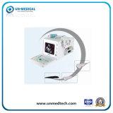 Scanner van de Ultrasone klank van medisch/Doppler B/W van het Ziekenhuis de Draagbare Digitale
