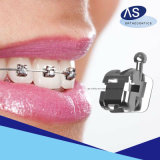 波カッコを縛っているDentalesの高品質の製造のように歯科矯正学の自己