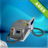 Nd YAG Laser-Tätowierung-Abbau