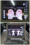 Spitzenverkaufenknicke Hifu im Gesichtmaschine korea-Hifu beste Anti