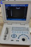 De Machine van de Ultrasone klank van het notitieboekje B/W, de Scanner van de LEIDENE Laptop Ultrasone klank