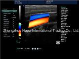 Medizinische LED 3D bewegliche Ultraschall-Farbe Doppler des Cer-