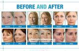 Machine portative de massage facial de l'oxygène de dermabrasion d'hydre d'utilisation de STATION THERMALE