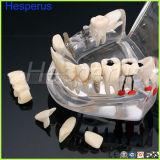 Modello d'istruzione dei denti di malattia smontabile dell'innesto dentale