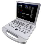 De draagbare Scanner van de Ultrasone klank van Doppler van de Kleur voor Mens