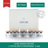 La cura di pelle di rimozione del contrassegno dell'acne di rimozione dell'acne di trattamento della pigmentazione imposta la polvere liofilizzata la riparazione dei contrassegni dell'acne