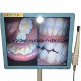 17インチのモニタが付いている歯科USBの口頭カメラ