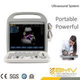 Scanner portátil de ultra-som com Doppler colorido ( BCU -30)