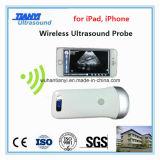 Sonda de ultrasonido inalámbrico para iPhone iPad Android Teléfono